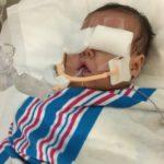 【育児記録14】未熟児網膜症が進行し、再レーザー治療&冷凍凝固治療を行いました
